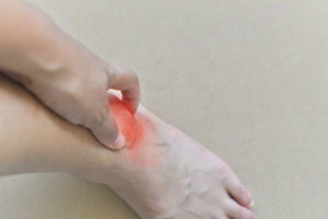 Symptoms Of Gout In Toe